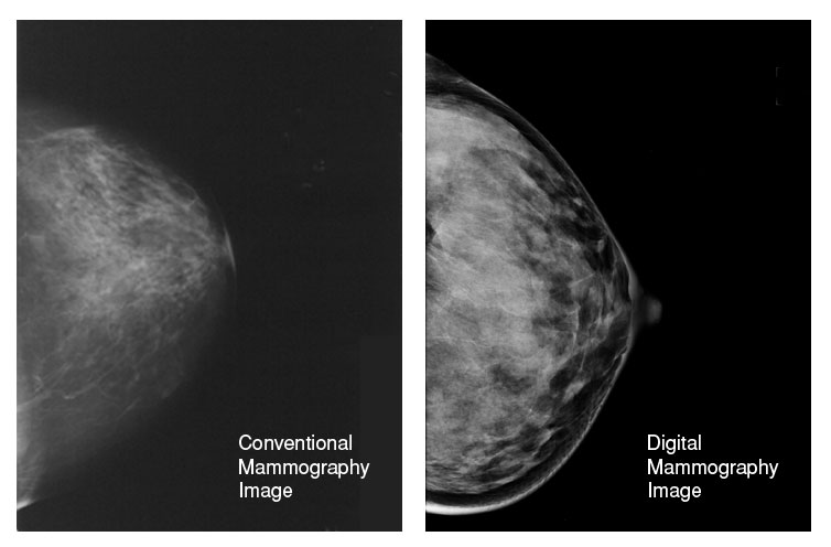 digital mammography comparison